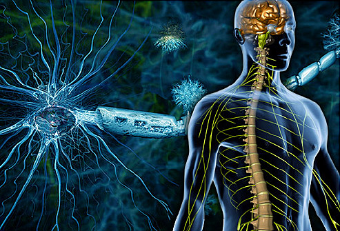 A Naturopathic Approach to Multiple Sclerosis