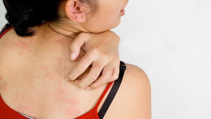 Your Diet May be Affecting Your Eczema