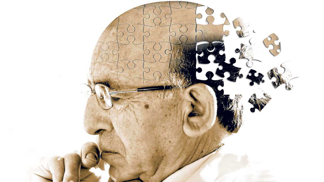 Alzheimer S Disease And Dementia